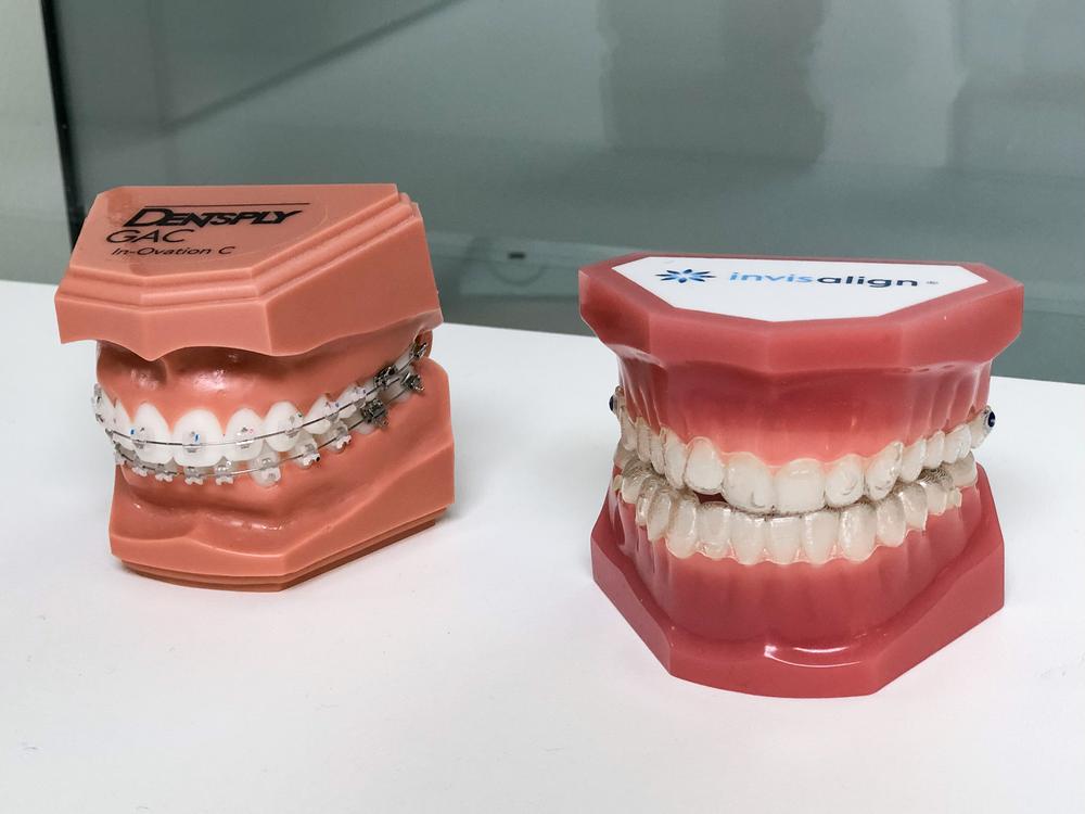 traitement invisalign et appareil dentaire