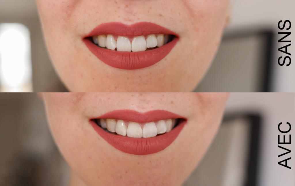 sourire et dentition avec et sans aligner invisalign