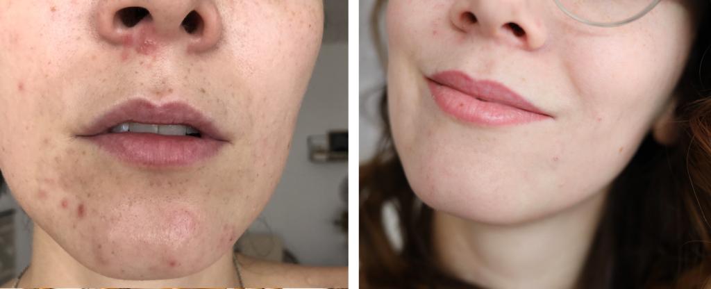 avant / après acné visage bouton peau zéro défaut